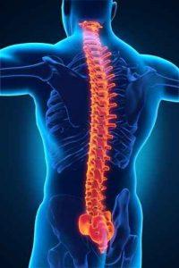 Miramar Spine Repair